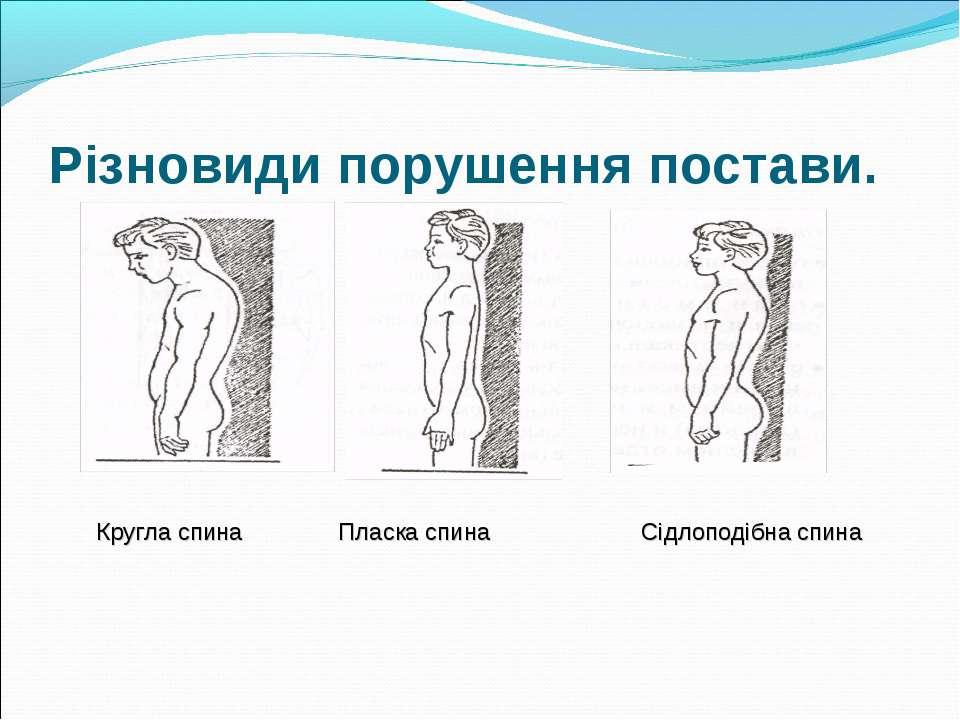 Різновиди порушення постави. Кругла спина Пласка спина Сідлоподібна спина