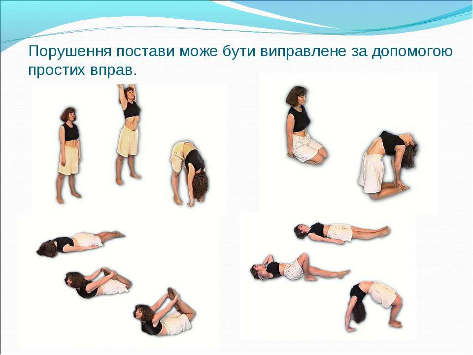 Порушення постави може бути виправлене за допомогою простих вправ.