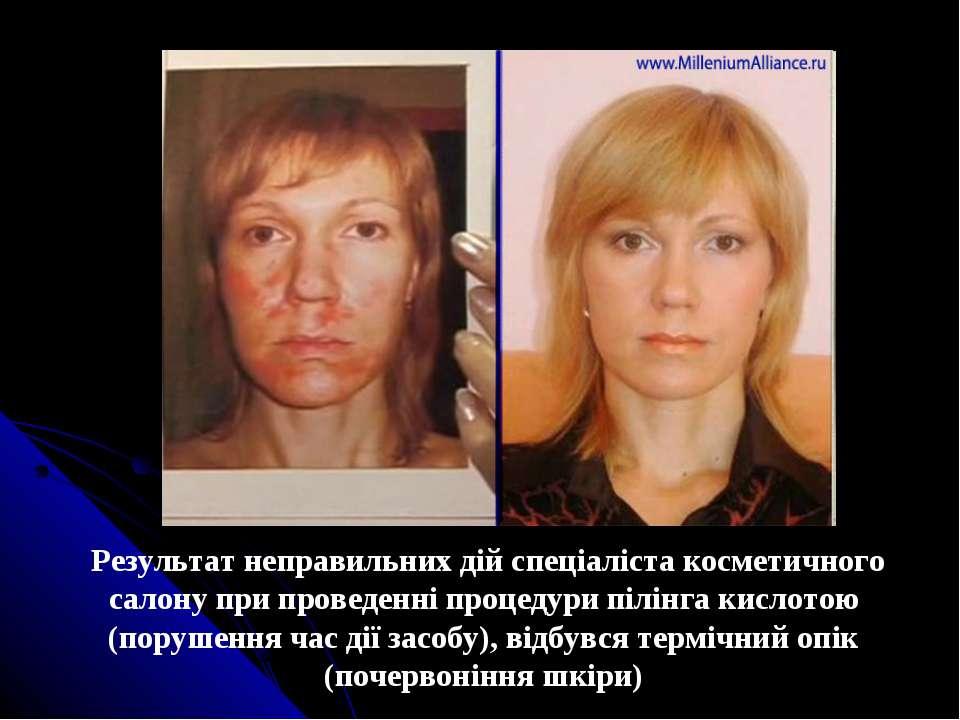 Результат неправильних дій спеціаліста косметичного салону при проведенні про...