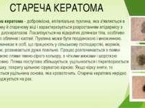 СТАРЕЧА КЕРАТОМА Стареча кератома- доброякісна, епітеліальна пухлина, яка з'...