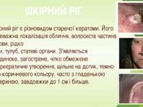 ШКІРНИЙ РІГ Шкірний ріг є різновидом старечої кератоми. Його переважна локалі...