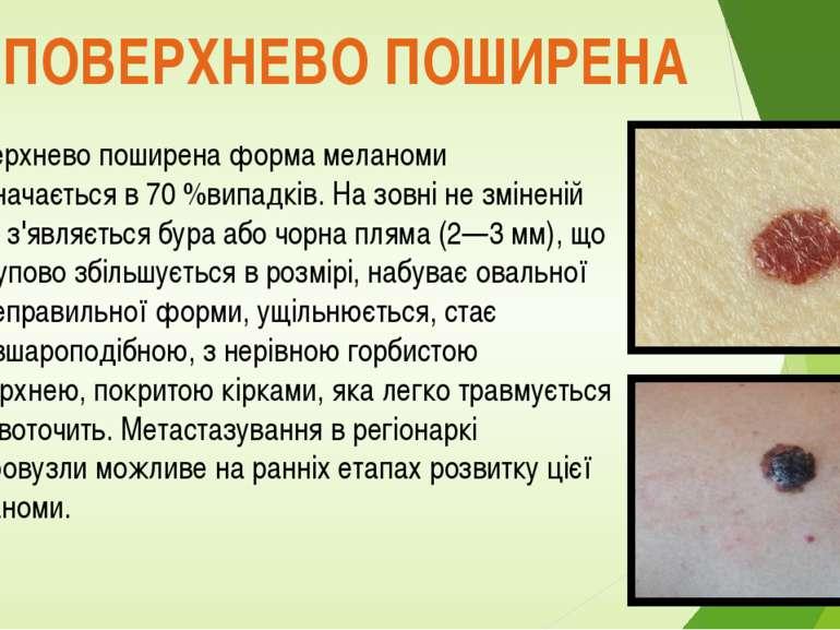 ПОВЕРХНЕВО ПОШИРЕНА Поверхнево поширена форма меланоми відзначається в 70 %ви...