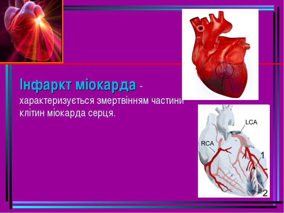 Інфаркт міокарда - характеризується змертвінням частини клітин міокарда серця.
