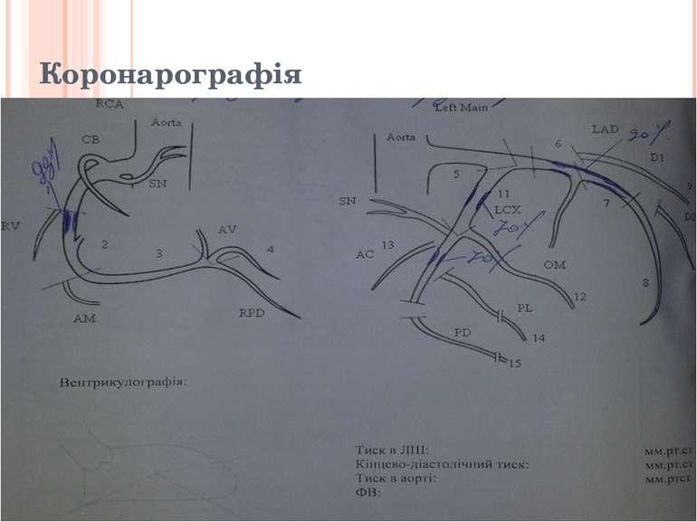 Коронарографія