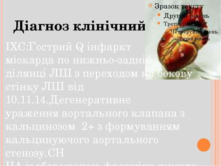 Діагноз клінічний ІХС:Гострий Q інфаркт міокарда по нижньо-задній ділянці ЛШ ...