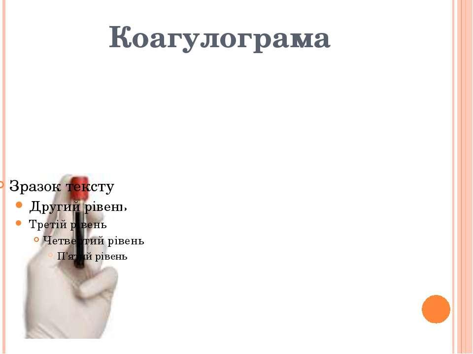 """Коагулограма Протромбіновий індекс,% - 93 Час рекальцифікації – 2'00"""" Фібрино..."""