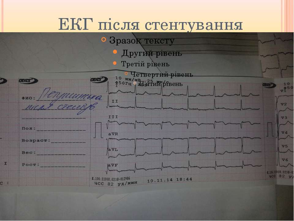 ЕКГ після стентування