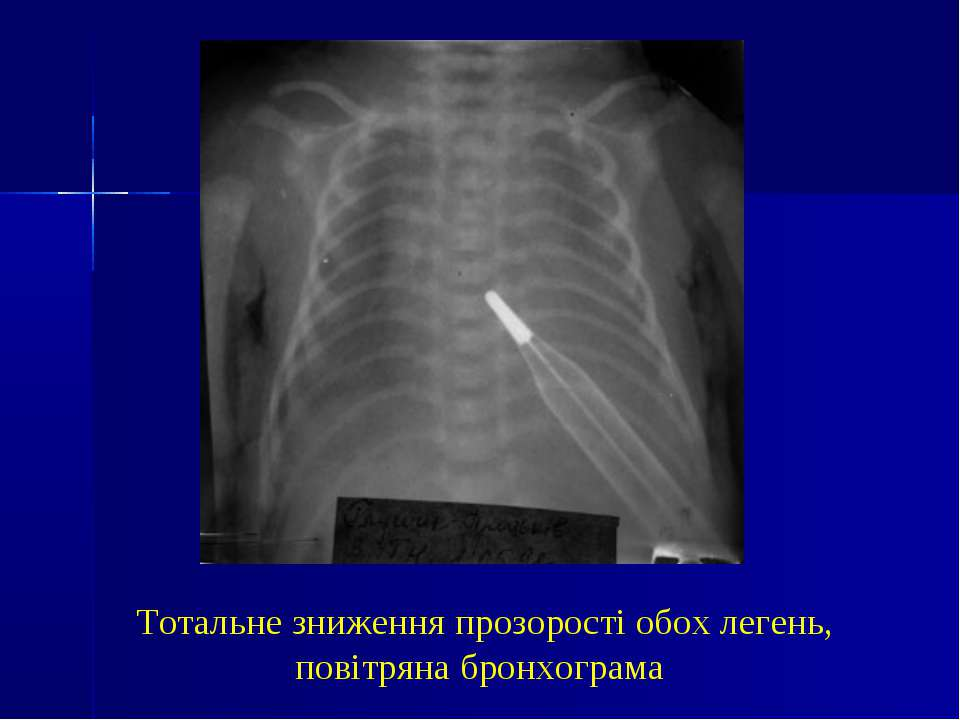 Тотальне зниження прозорості обох легень, повітряна бронхограма