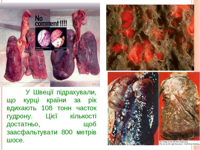 У Швеції підрахували, що курці країни за рік вдихають 108 тонн часток гудрону...