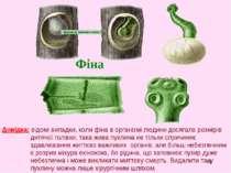 * Фіна Довідка: відомі випадки, коли фіна в організмі людини досягала розмірі...