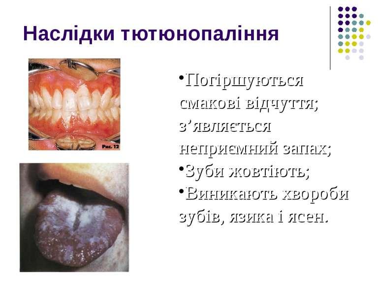 Наслідки тютюнопаління Погіршуються смакові відчуття; з'являється неприємний ...