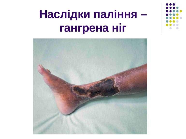 Наслідки паління – гангрена ніг