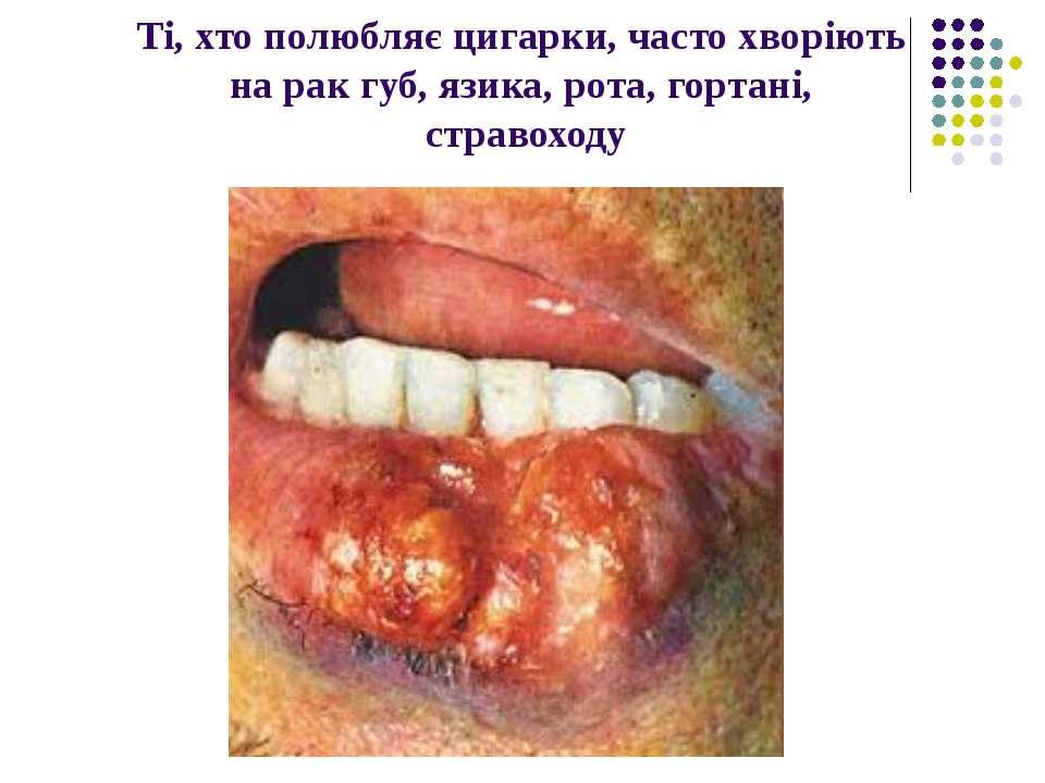 Ті, хто полюбляє цигарки, часто хворіють на рак губ, язика, рота, гортані, ст...