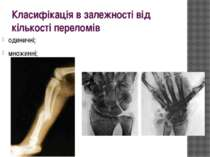 Класифікація в залежності від кількості переломів одиничні; множинні;