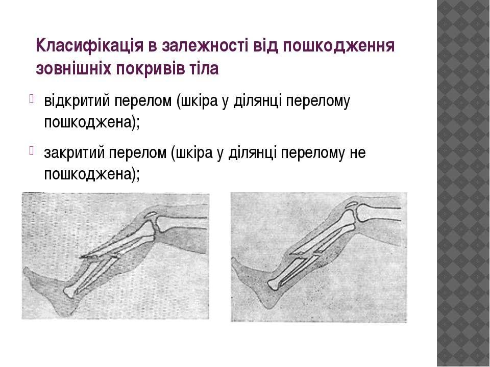 Класифікація в залежності від пошкодження зовнішніх покривів тіла відкритий п...