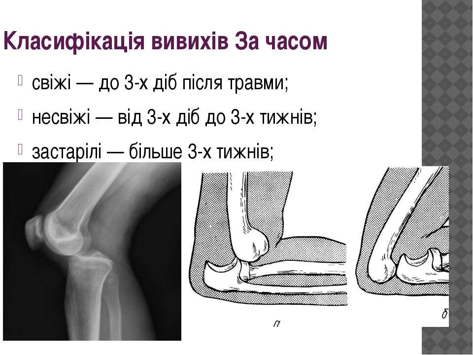 Класифікація вивихів За часом свіжі — до 3-х діб після травми; несвіжі — від ...
