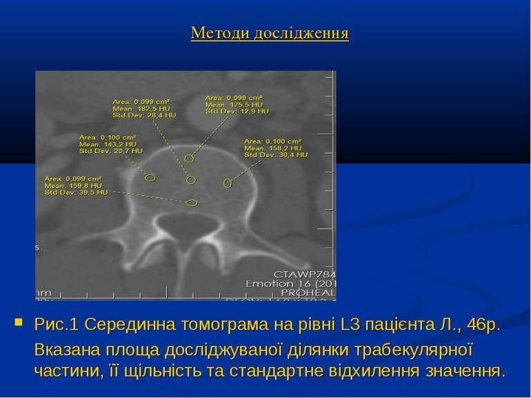 Методи дослідження Рис.1 Серединна томограма на рівні L3 пацієнта Л., 46р. Вк...