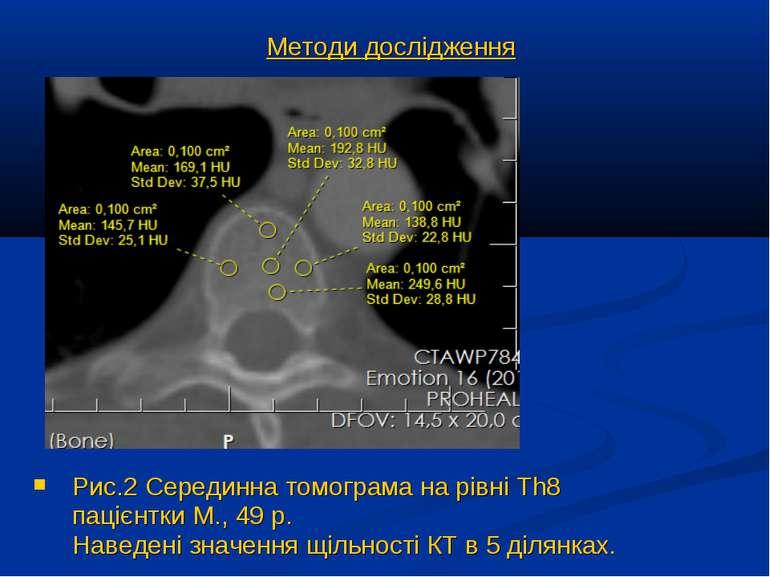 Рис.2 Серединна томограма на рівні Th8 пацієнтки М., 49 р. Наведені значення ...