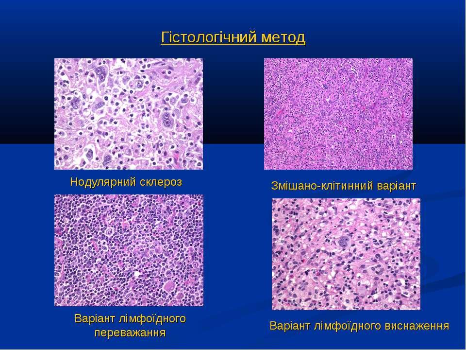 Гістологічний метод Нодулярний склероз Змішано-клітинний варіант Варіант лімф...
