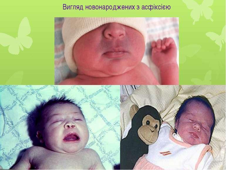 Вигляд новонароджених з асфіксією