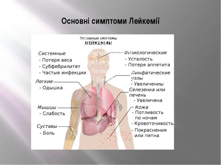 Основні симптоми Лейкемії