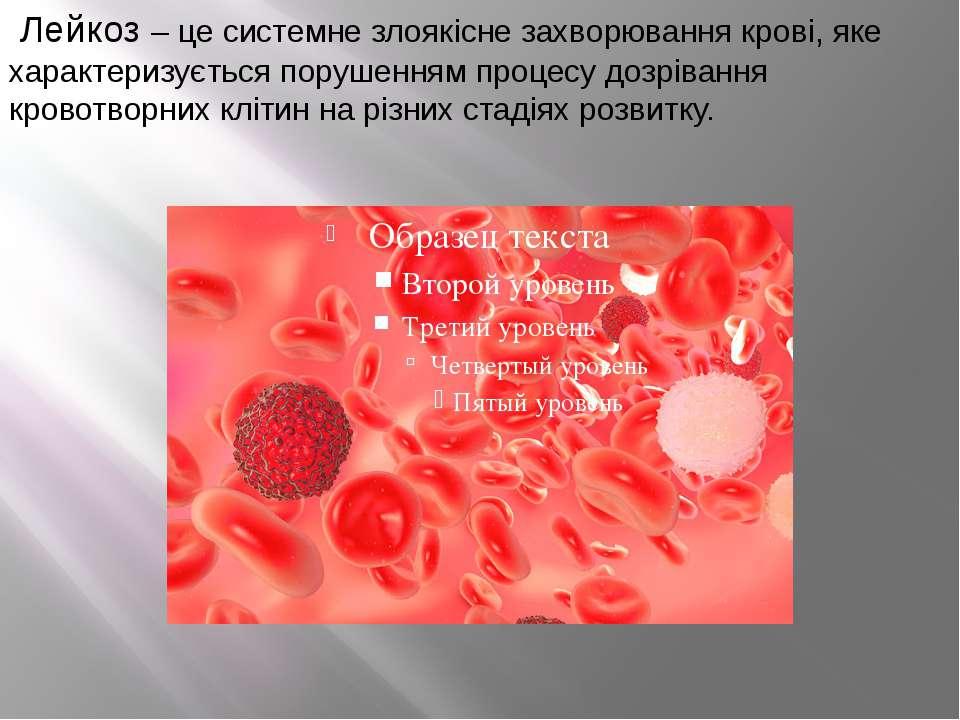 Лейкоз – це системне злоякісне захворювання крові, яке характеризується поруш...