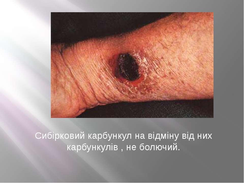 Сибірковий карбункул на відміну від них карбункулів , не болючий.