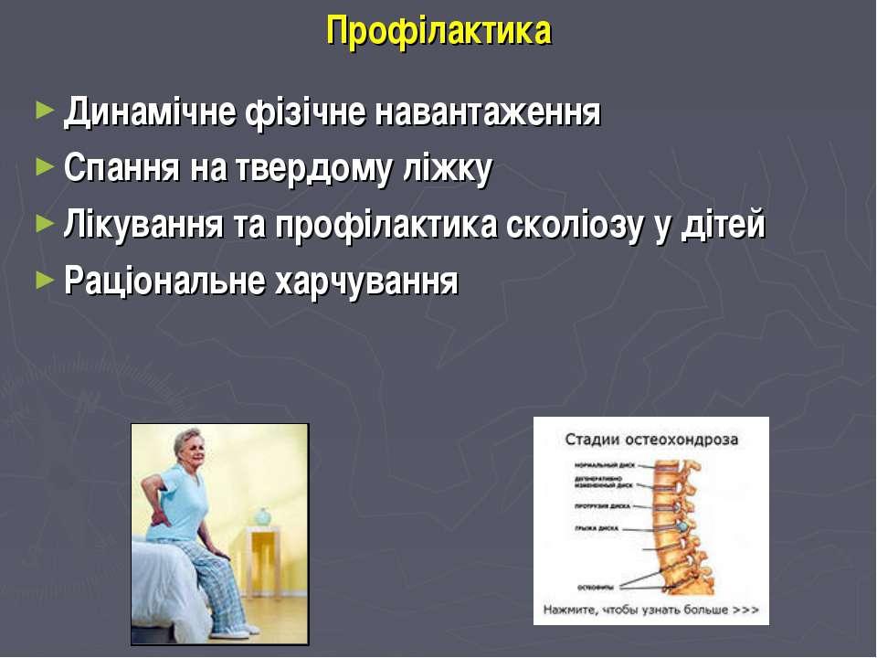 Профілактика Динамічне фізічне навантаження Спання на твердому ліжку Лікуванн...