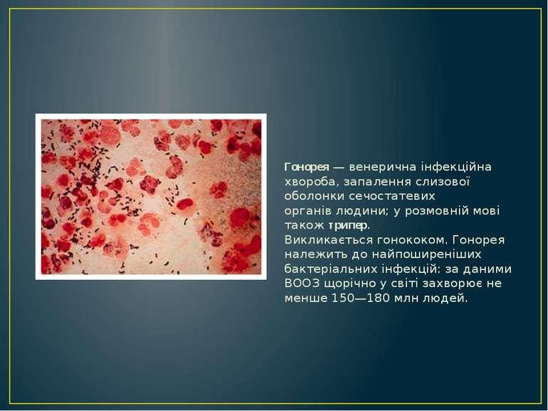 Гонорея—венерична інфекційна хвороба, запалення слизової оболонкисечостате...