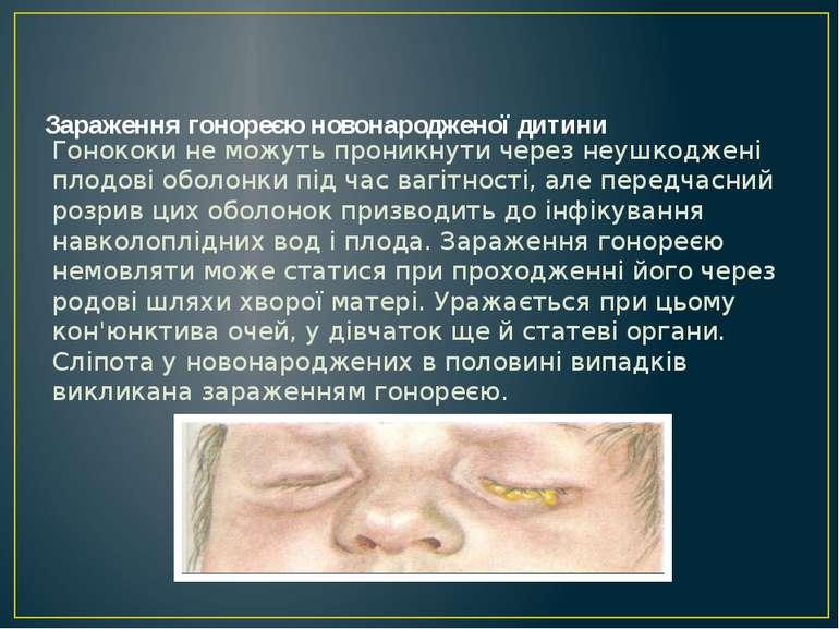 Зараження гонореєю новонародженої дитини Гонококи не можуть проникнути через ...