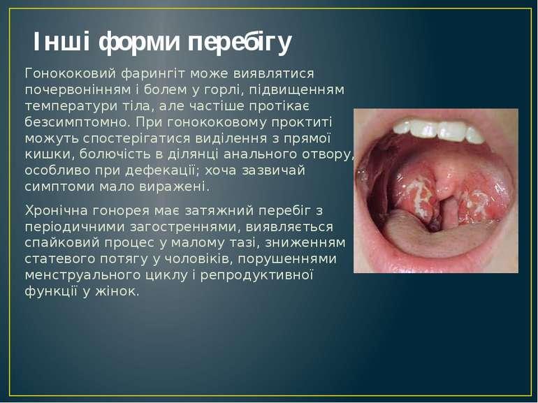 Інші форми перебігу Гонококовий фарингіт може виявлятися почервонінням і боле...