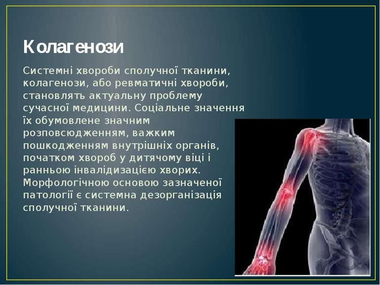 Колагенози Системні хвороби сполучної тканини, колагенози, або ревматичні хво...