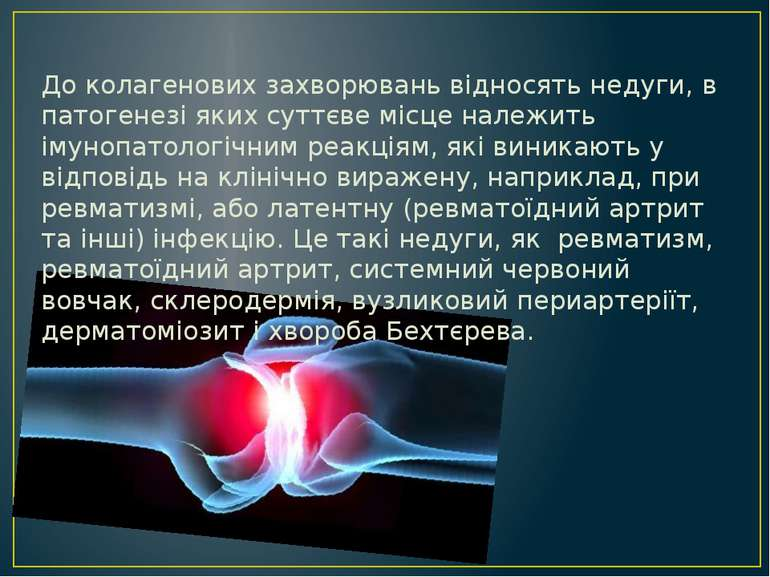 До колагенових захворювань відносять недуги, в патогенезі яких суттєве місце ...