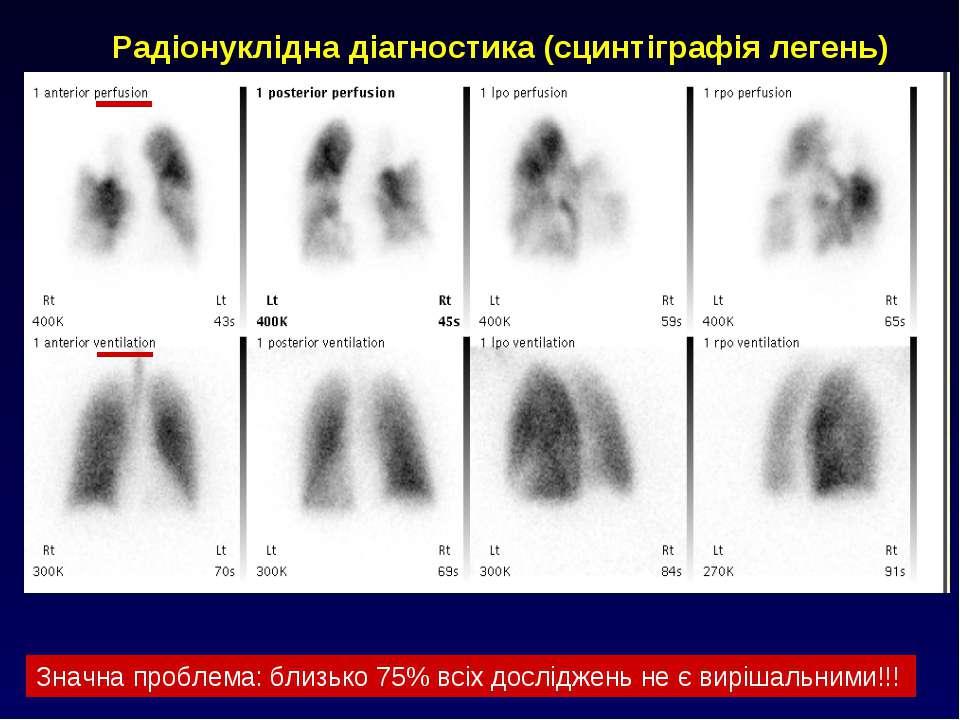 Радіонуклідна діагностика (сцинтіграфія легень) Значна проблема: близько 75% ...