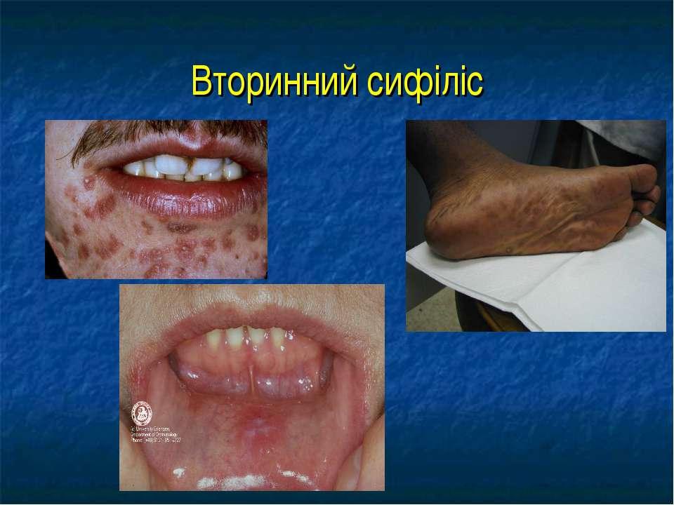 Вторинний сифіліс