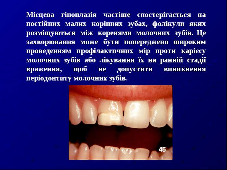Місцева гіпоплазія частіше спостерігається на постійних малих корінних зубах,...