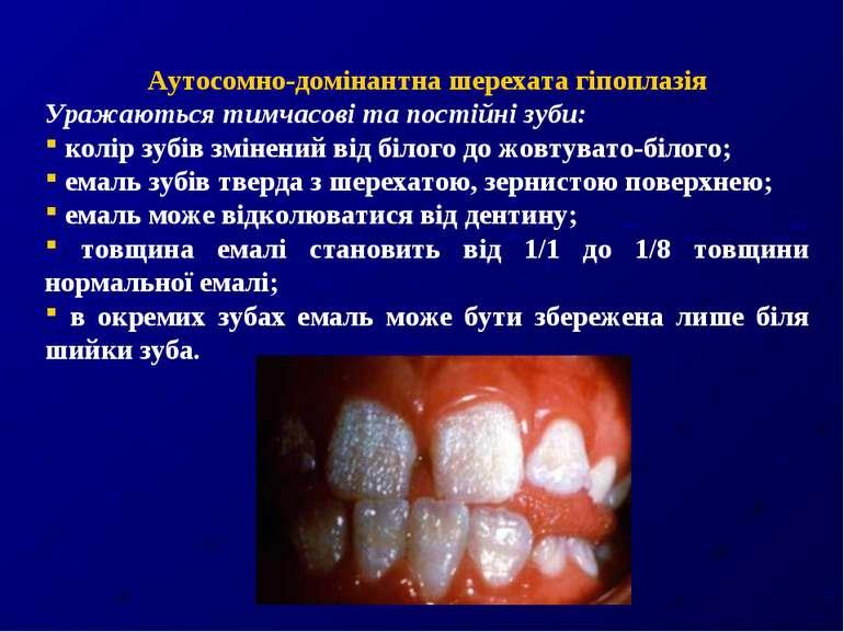 Аутосомно-домінантна шерехата гіпоплазія Уражаються тимчасові та постійні зуб...