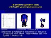 Ренограми та сцинтифото нирок з 99mТс-ДТПО (діетилентриамінопентоацетат) Рено...