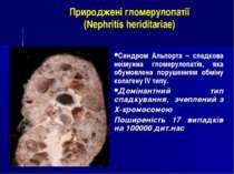 Природжені гломерулопатії (Nephritis heriditariae) Синдром Альпорта – спадков...