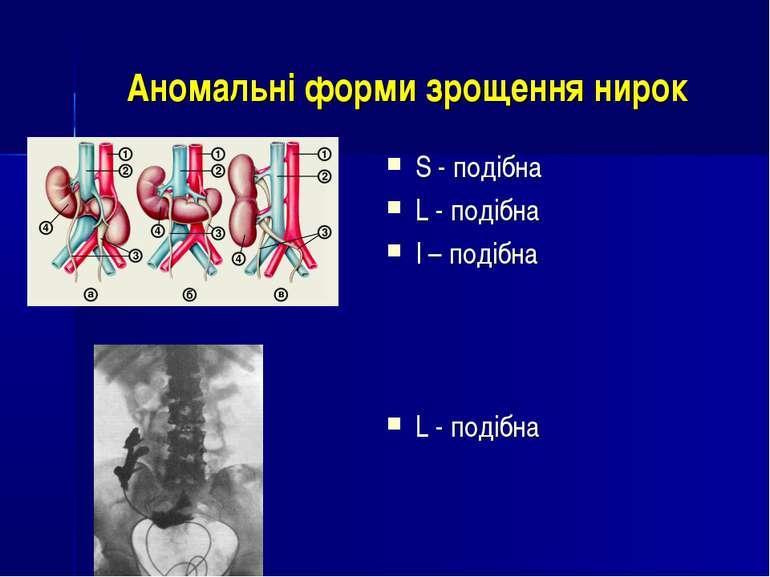 Аномальні форми зрощення нирок S - подібна L - подібна I – подібна L - подібна