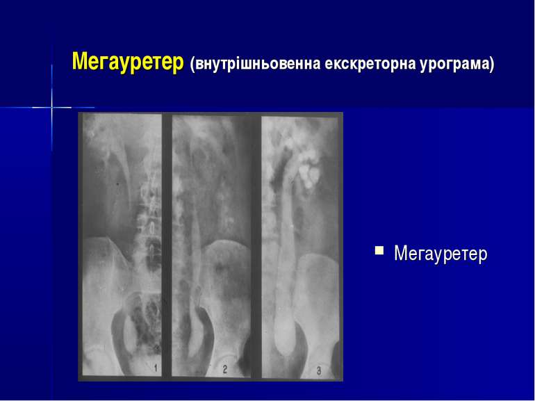 Мегауретер (внутрішньовенна екскреторна урограма) Мегауретер