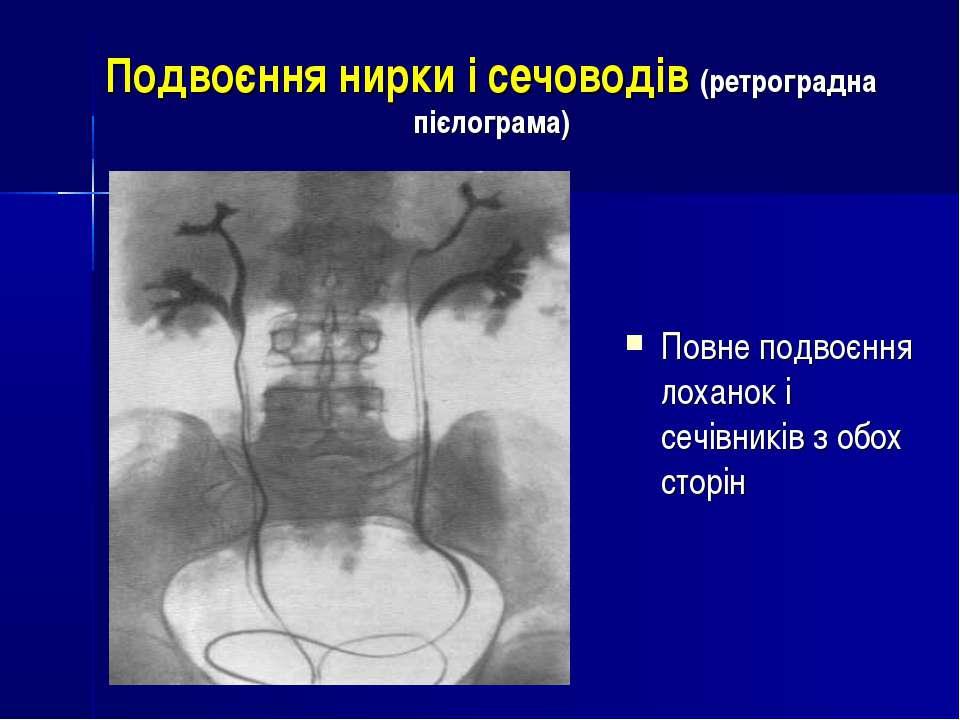 Подвоєння нирки і сечоводів (ретроградна пієлограма) Повне подвоєння лоханок ...