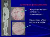 Ювінільна форма міопатії Атрофия м'язових волокон та кордіосклероз Межреберні...