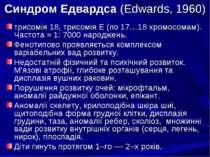 Синдром Едвардса (Edwards, 1960) трисомія 18, трисомія Е (по 17…18 хромосомам...