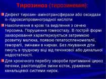 Тирозиноз (тирозинемія): Дефект тирозин–амінотрансферази або оксидази n–гідро...