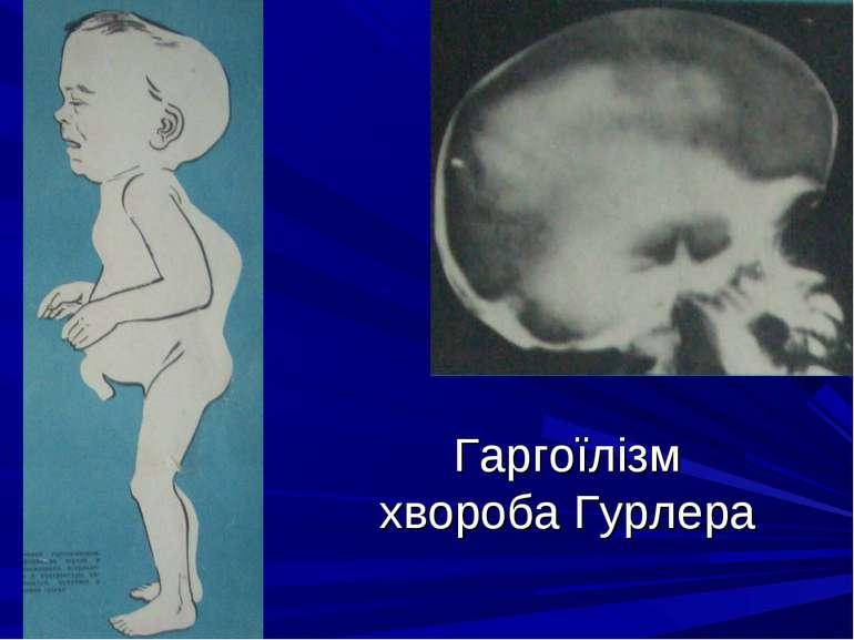 Гаргоїлізм хвороба Гурлера