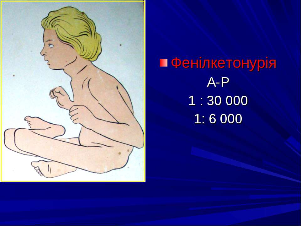 Фенілкетонурія А-Р 1 : 30 000 1: 6 000