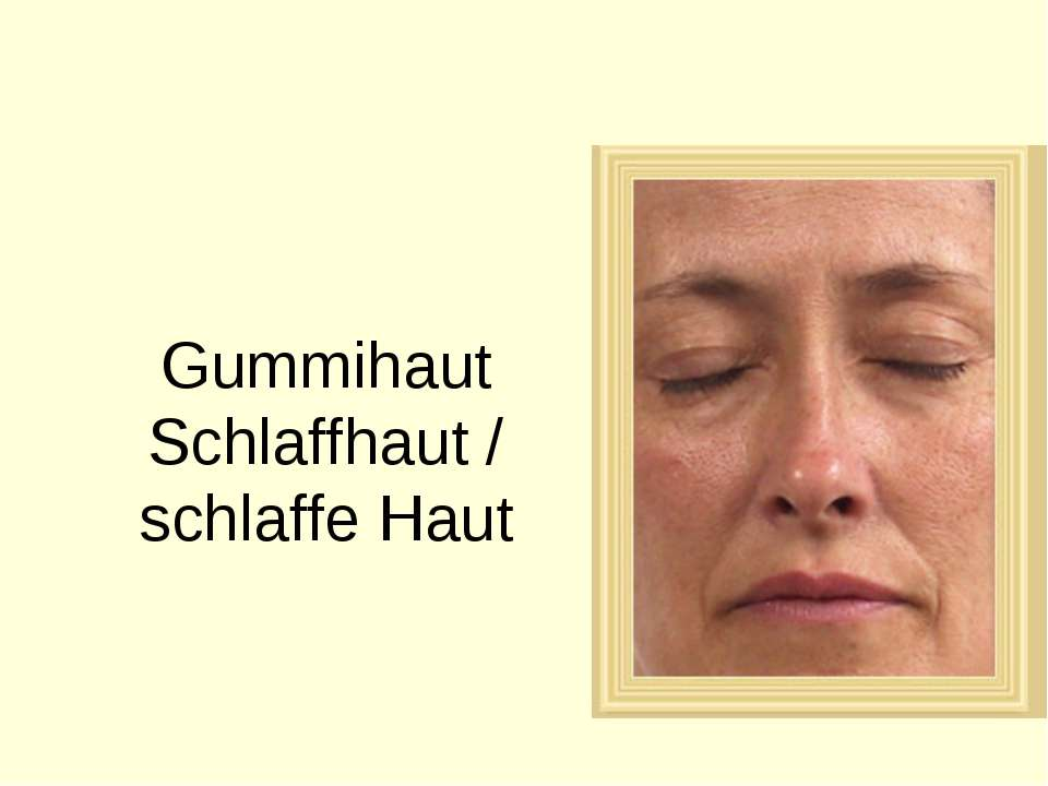 Gummihaut Schlaffhaut / schlaffe Haut