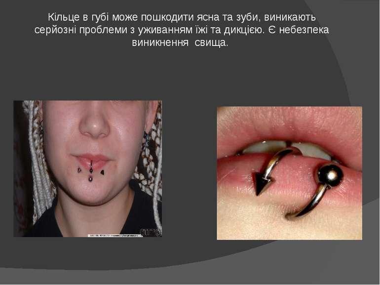 Кільце в губі може пошкодити ясна та зуби, виникають серйозні проблеми з ужив...