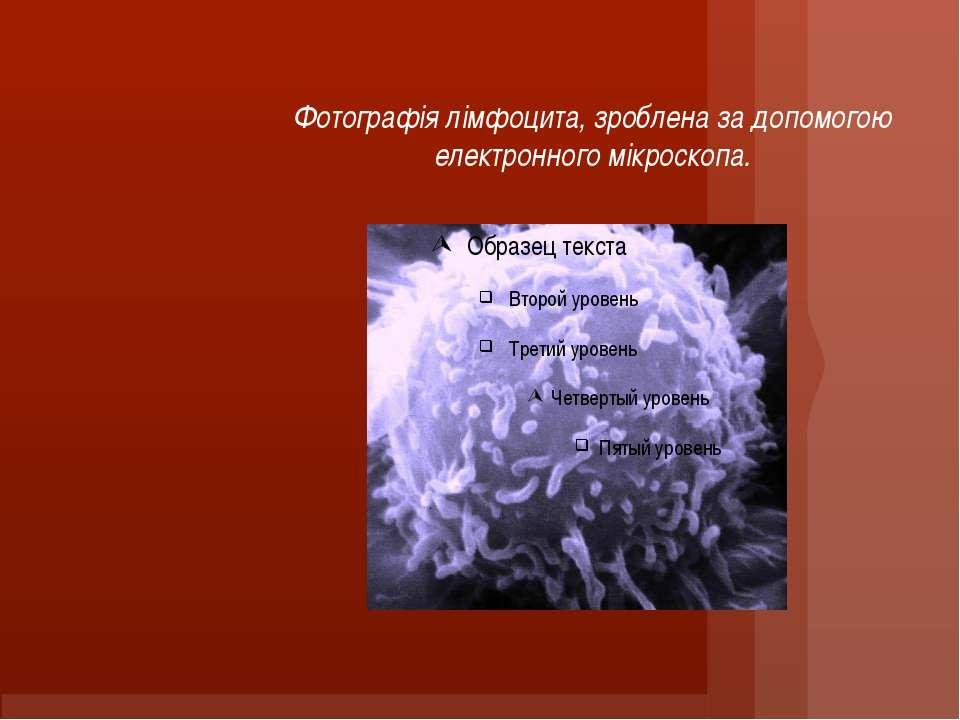 Фотографія лімфоцита, зроблена за допомогою електронного мікроскопа.
